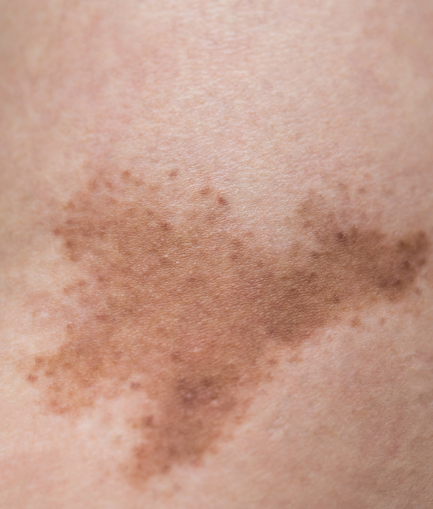 Hyperpigmentation on the skin