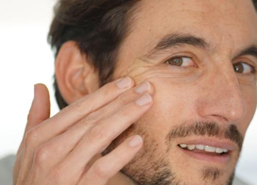 Sagging skin on a man's face
