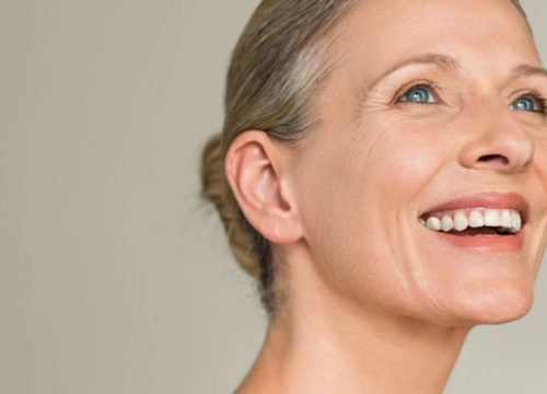 Smiling woman with facial volume loss