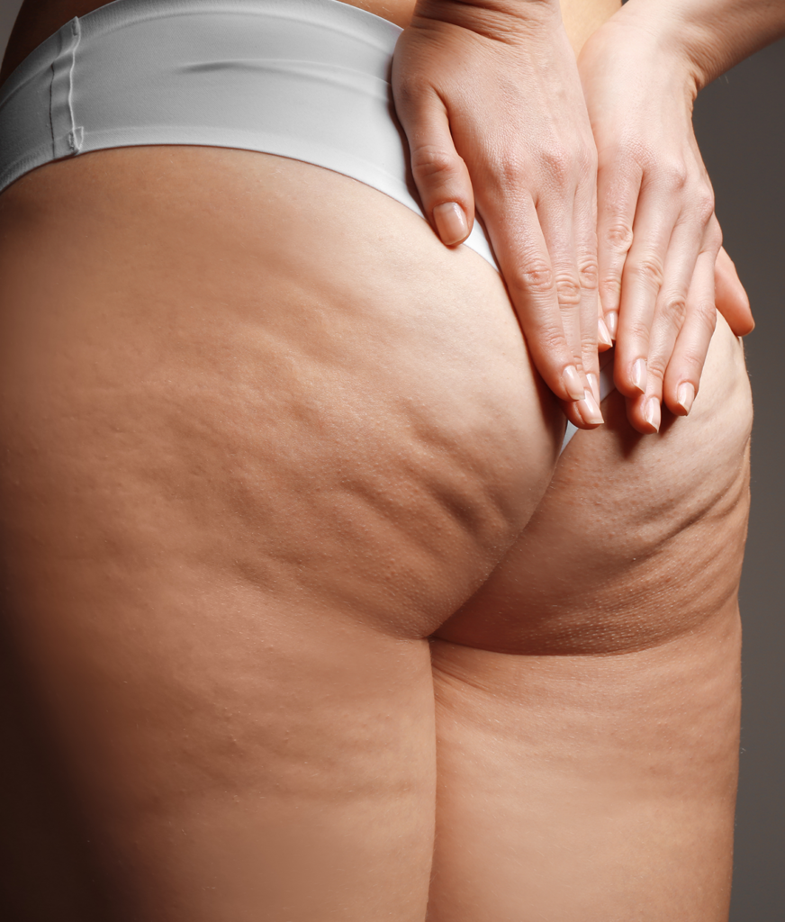 Cellulite on a woman's buttocks