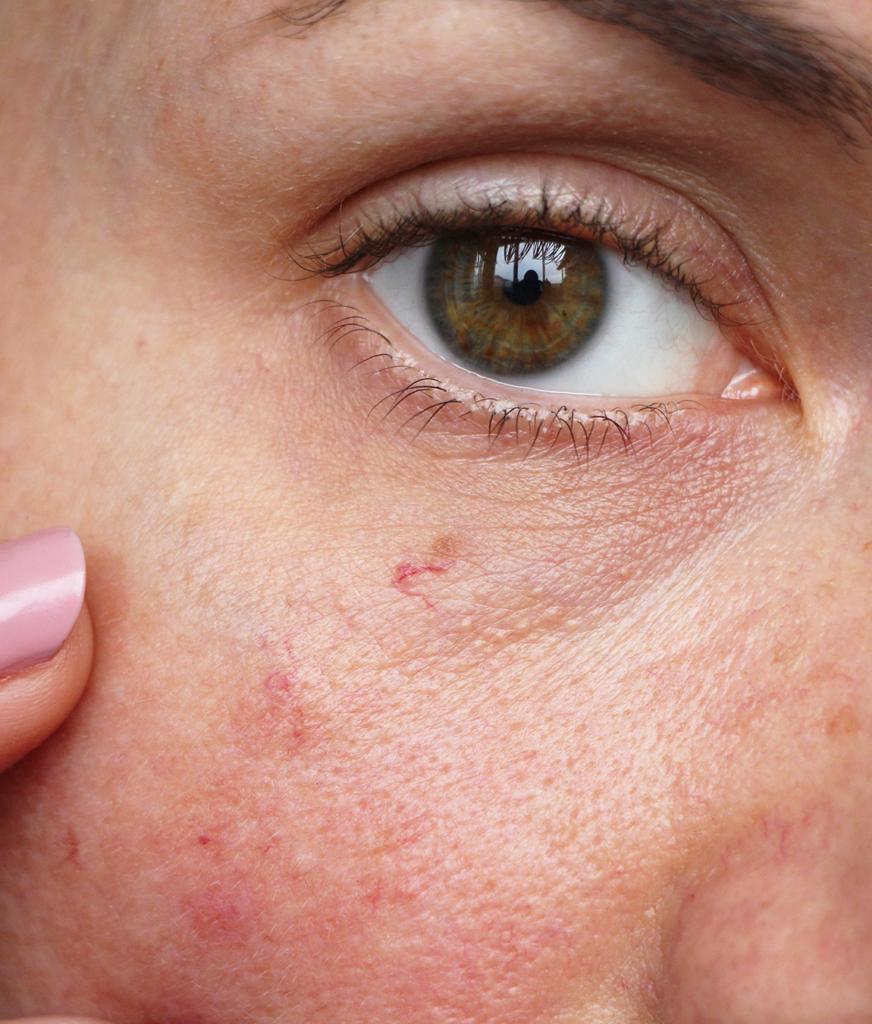 Close-up on facial redness