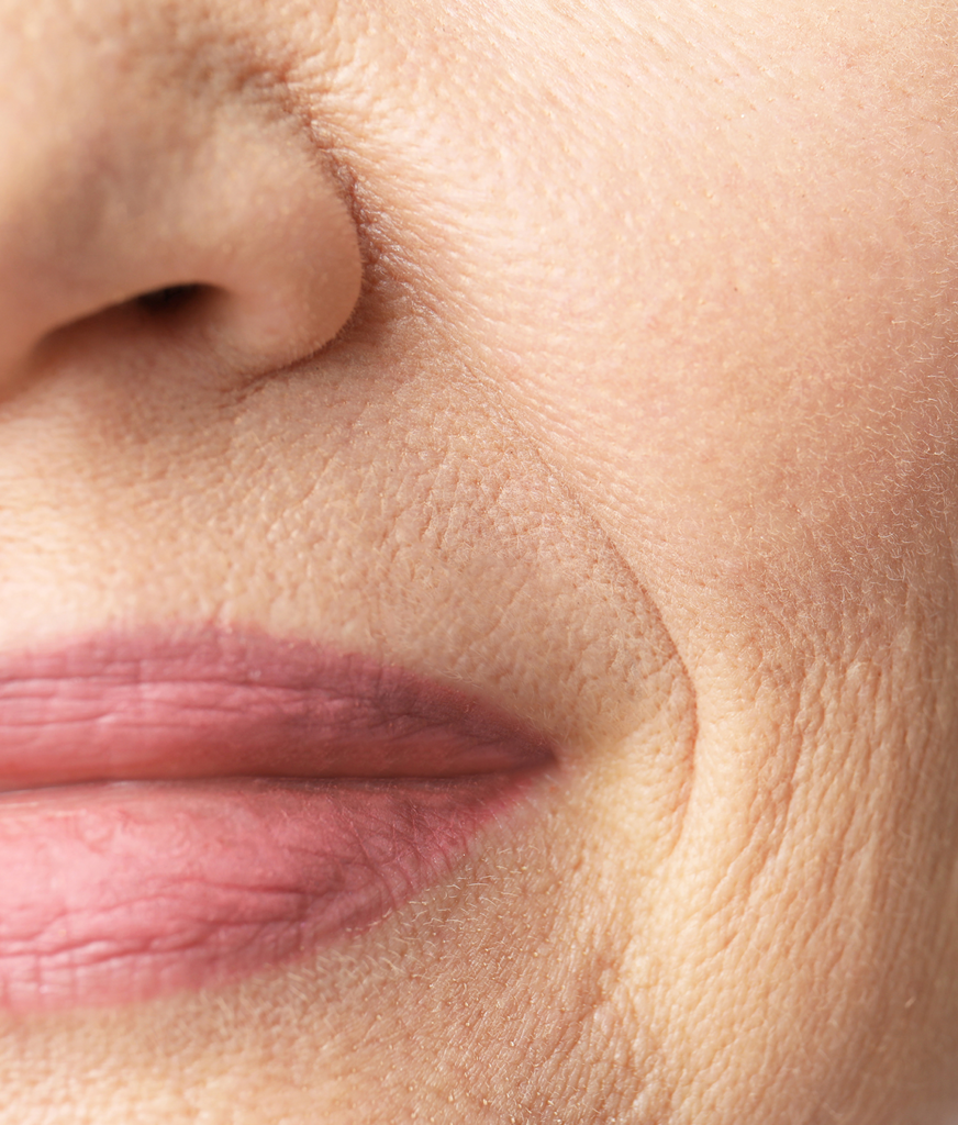 Close-up on fine lines and wrinkles on a woman's face