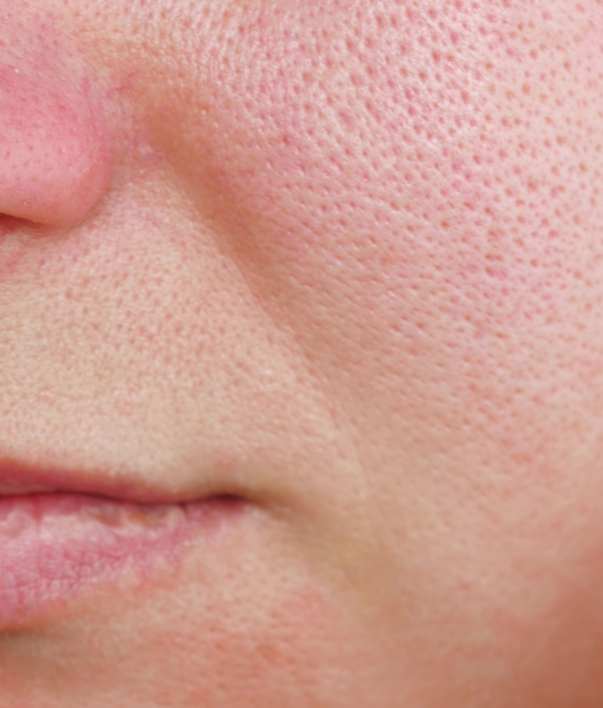 Close-up on large pores