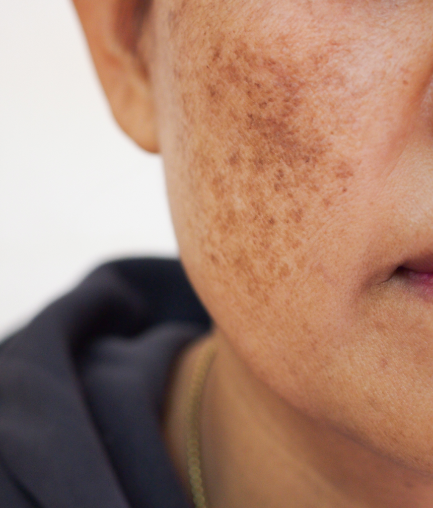 Melasma on a person's face