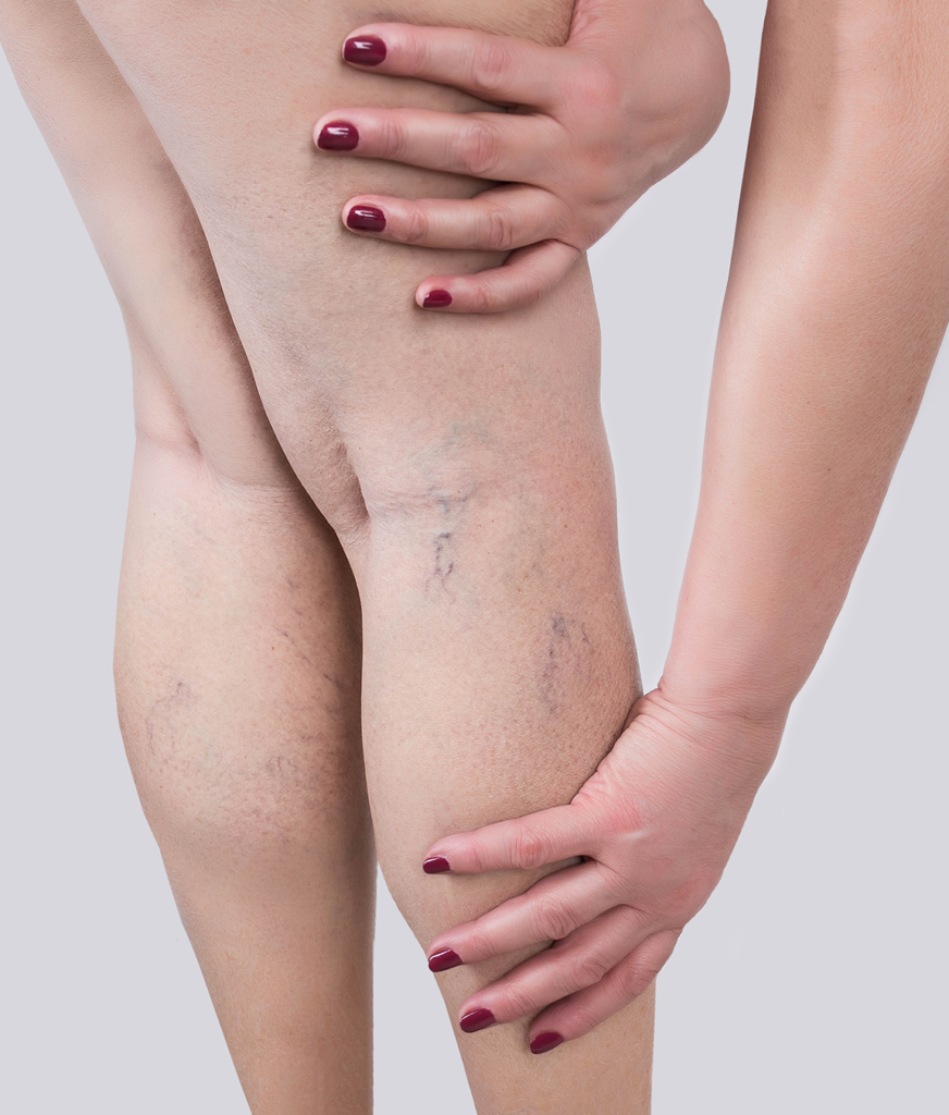 Spider veins on a woman's legs