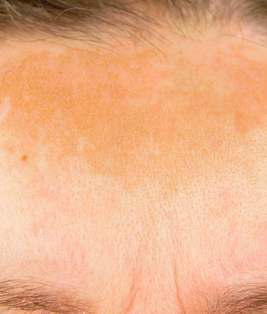 Sun damage on a woman's forehead