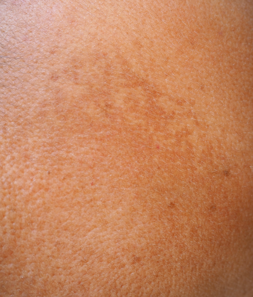 Age spots on a person's skin