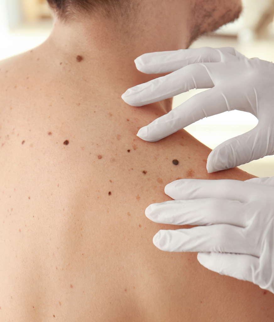Moles and sun damage on a man's back