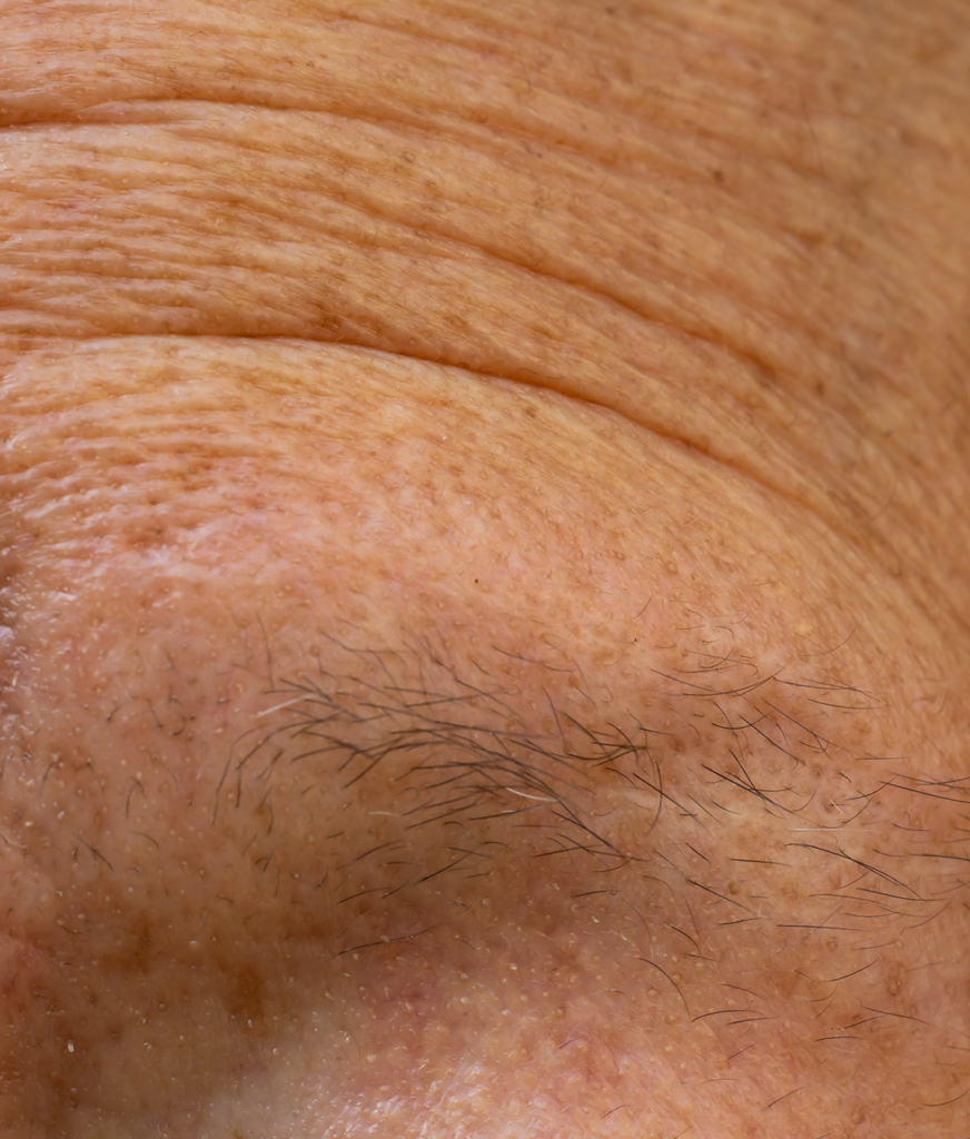 a thin eyebrow